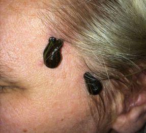 Ein Blutegel hat sich hinter einem menschlichen Ohr festgesaugt.